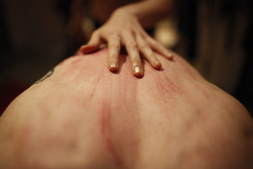 San Francisco Dominatrix Domina Yuki's hand placed on a male submissive's back covered in marks from their play.